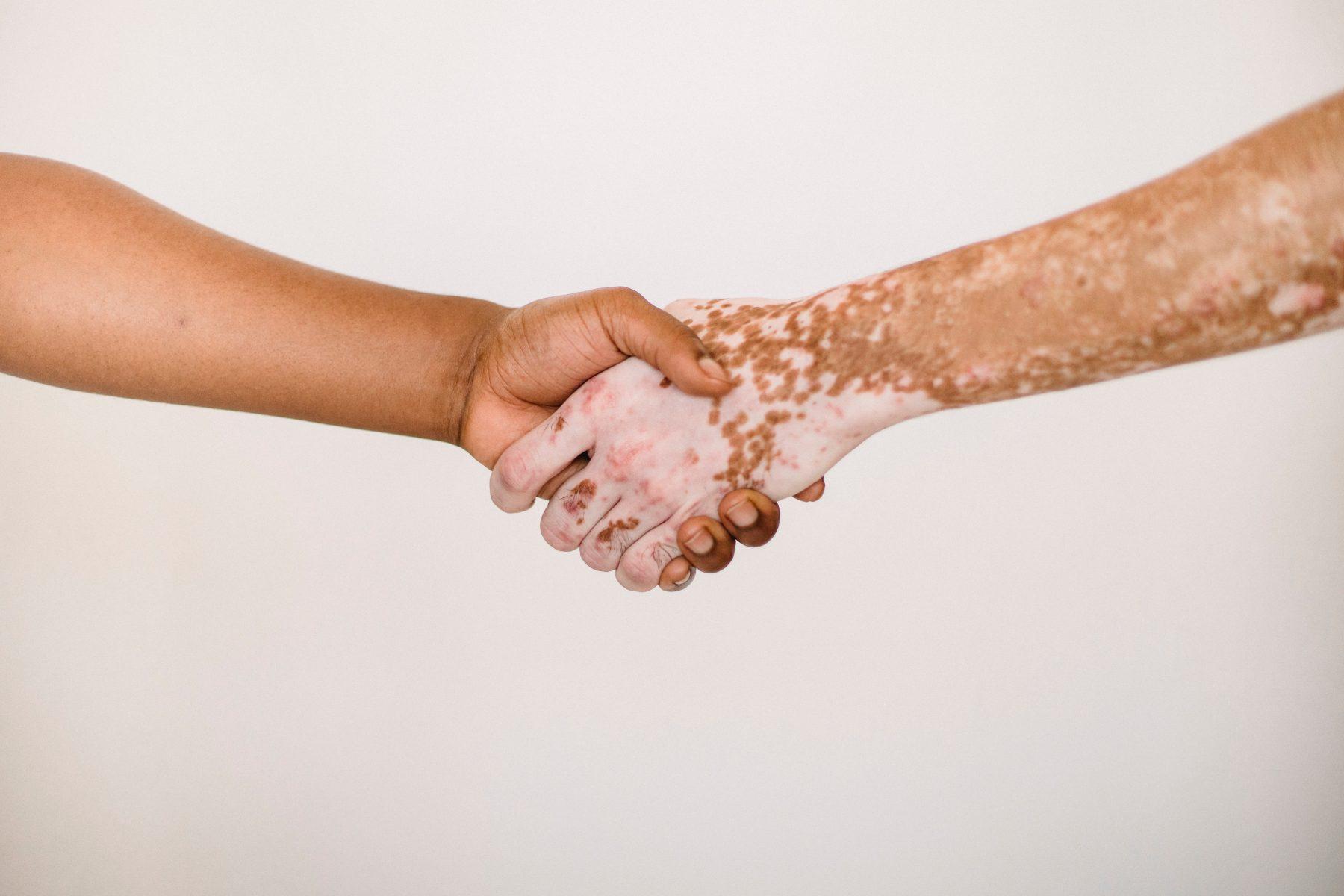 Zwei Personen, die sich die Hände schütteln.